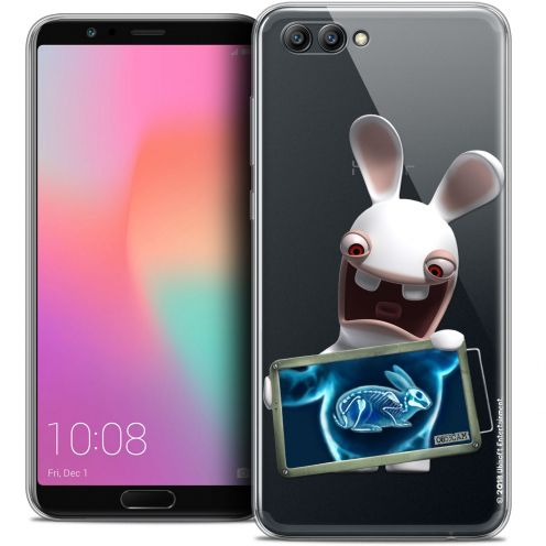 "Coque Gel Honor View 10 / V10 (6"") Extra Fine Lapins Crétins™ - X Ray Crétin"