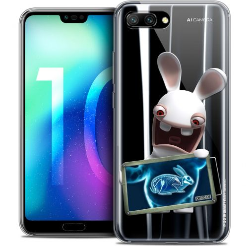 "Coque Gel Huawei Honor 10 (5.8"") Extra Fine Lapins Crétins™ - X Ray Crétin"